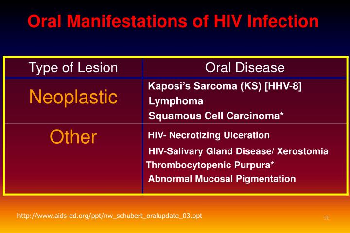 Oral Manifestations of HIV Infection