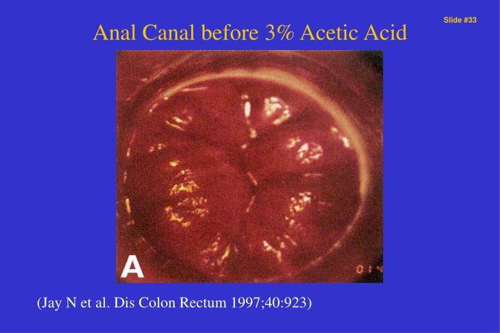 Anal Canal before 3% Acetic Acid