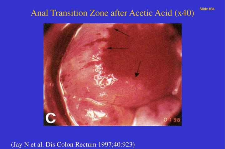 Anal Transition Zone after Acetic Acid (x40)