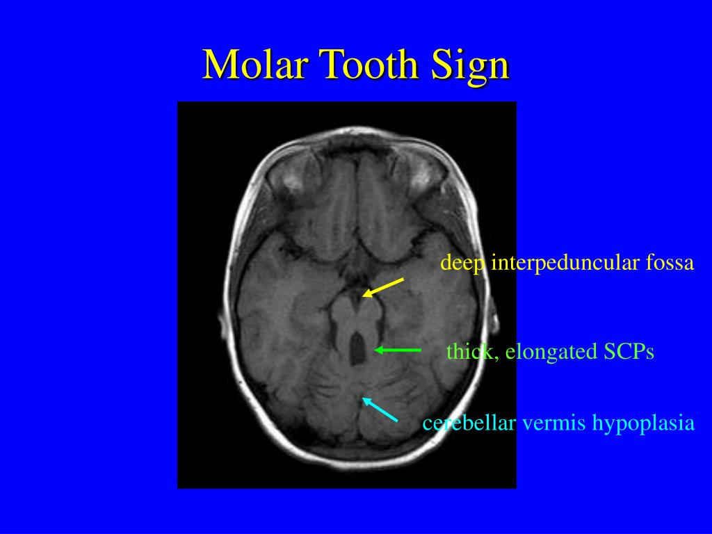 Molar Tooth Sign