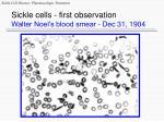 sickle cells first observation walter noel s blood smear dec 31 1904