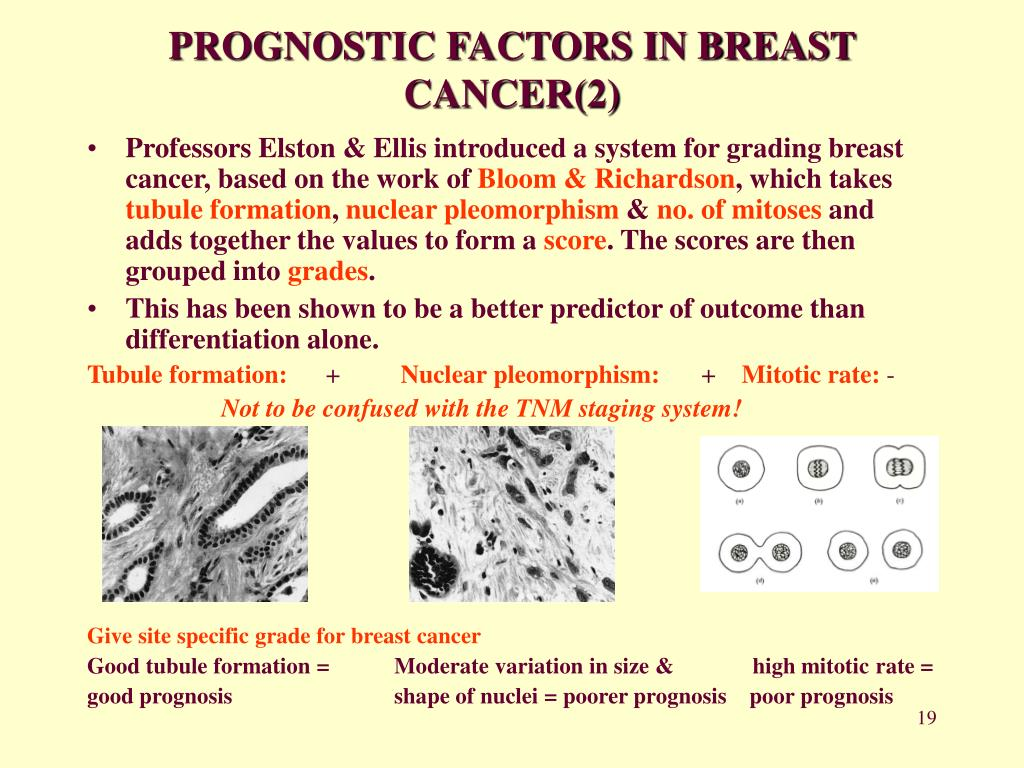 PROGNOSTIC FACTORS IN BREAST CANCER(2)