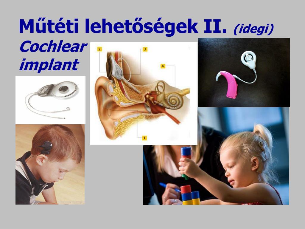 Műtéti lehetőségek II.