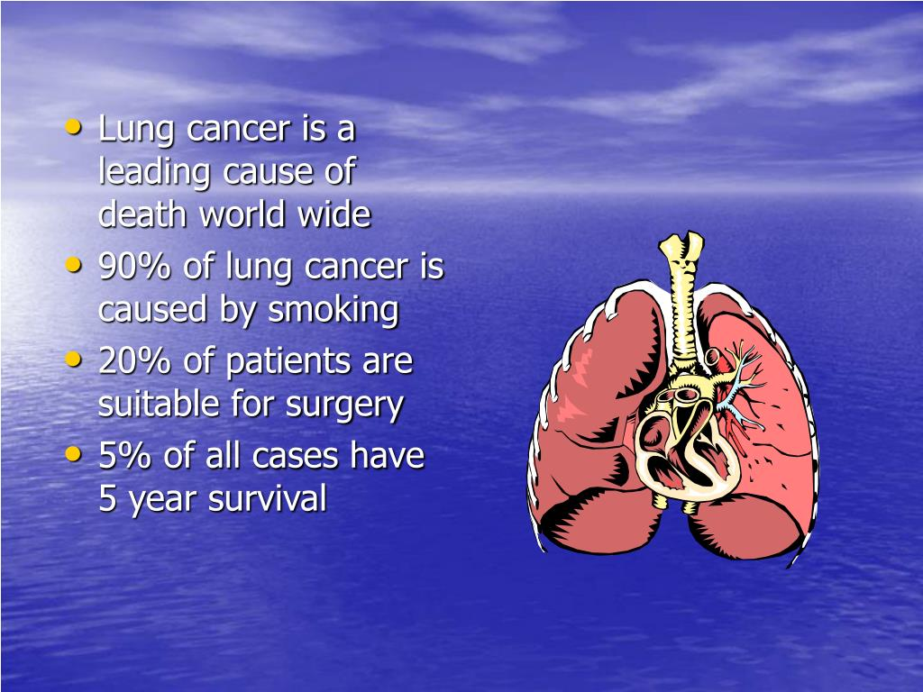 Lung cancer is a leading cause of death world wide