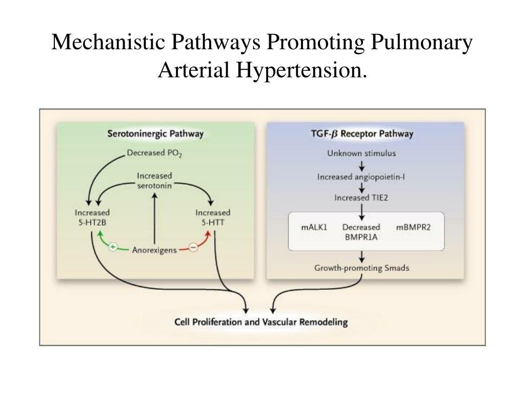 Mechanistic Pathways Promoting Pulmonary Arterial Hypertension.