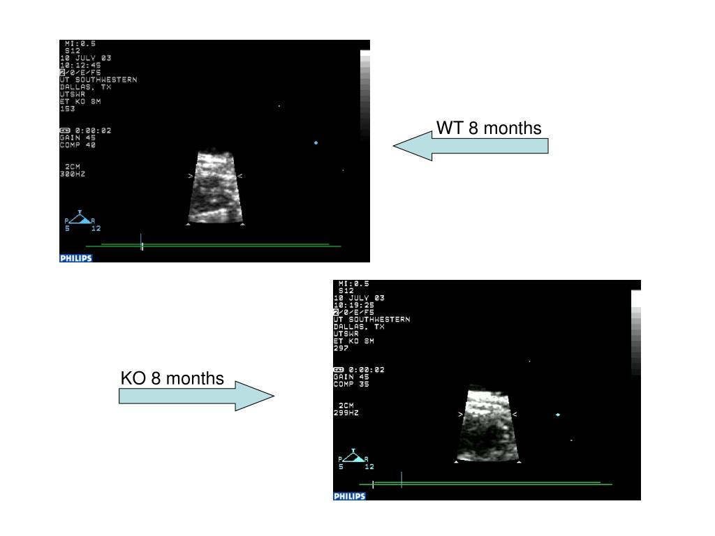 WT 8 months
