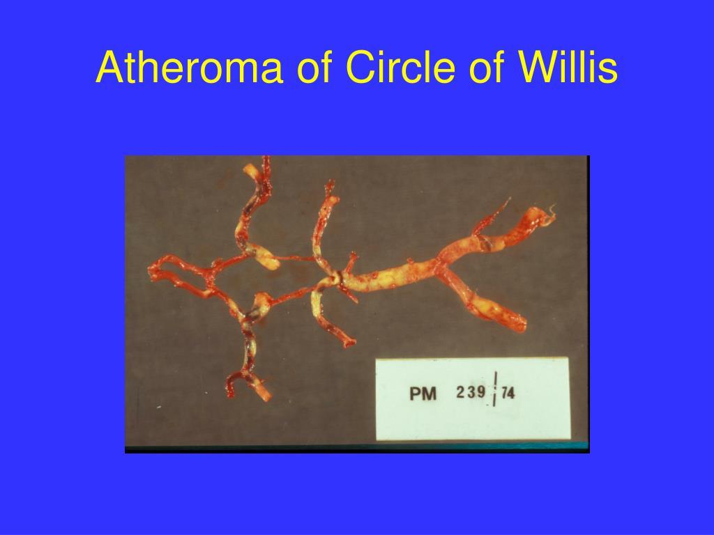 Atheroma of Circle of Willis