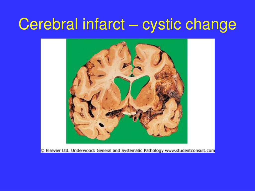 Cerebral infarct – cystic change