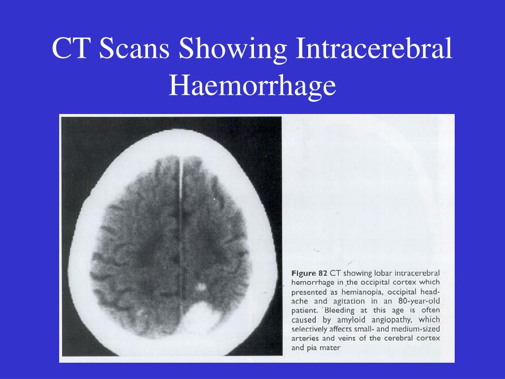 CT Scans Showing Intracerebral Haemorrhage