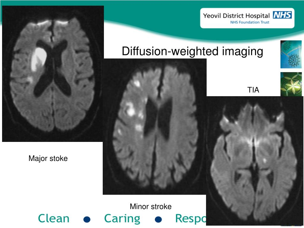 Diffusion-weighted imaging