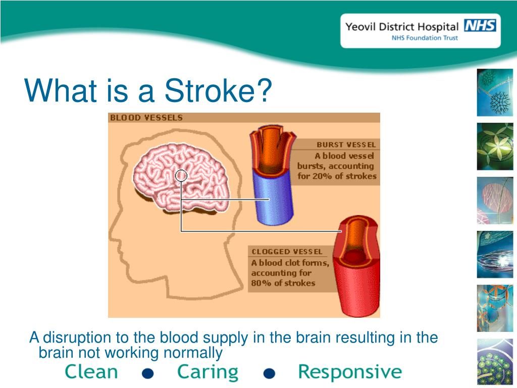 A disruption to the blood supply in the brain resulting in the brain not working normally