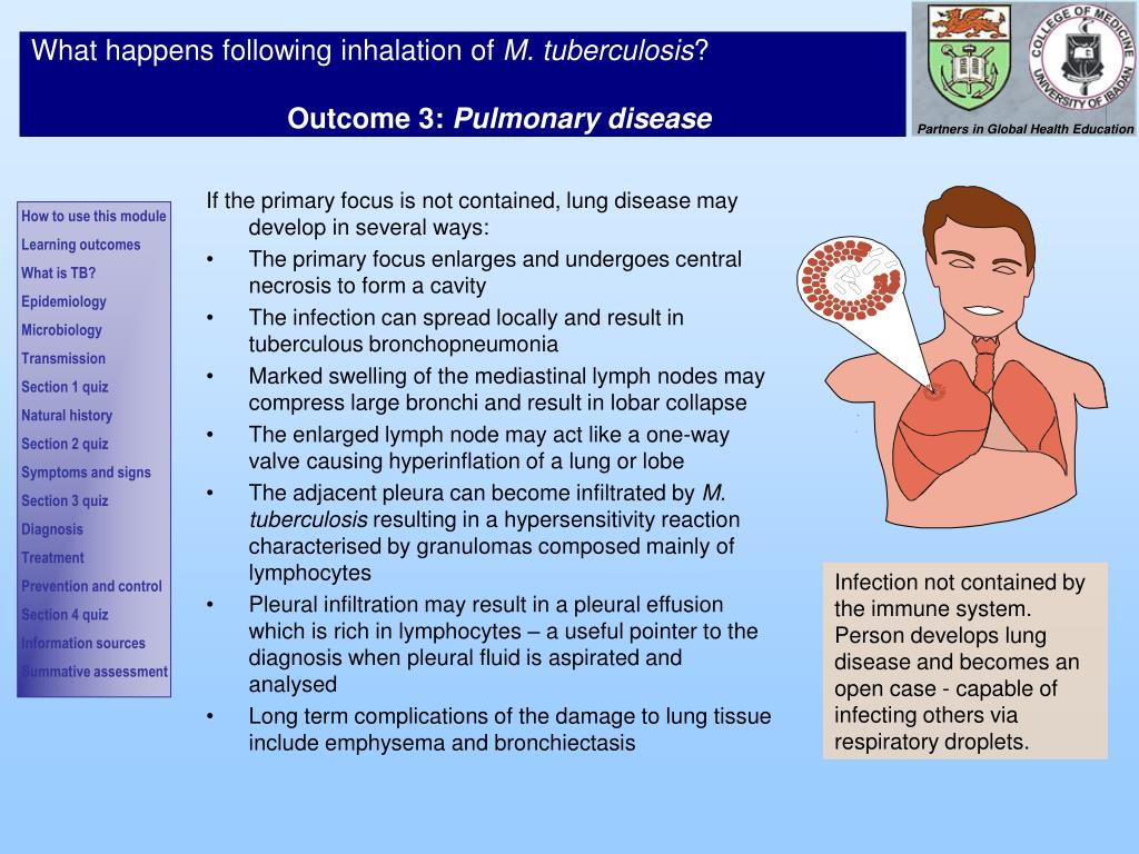If the primary focus is not contained, lung disease may develop in several ways: