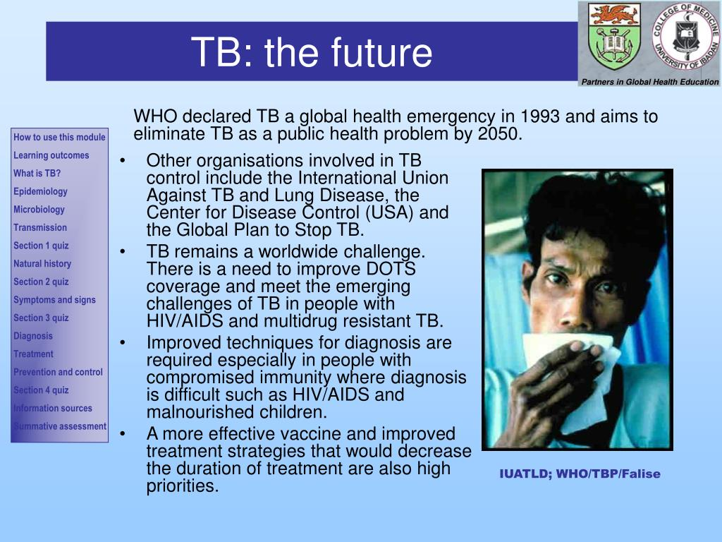 TB: the future