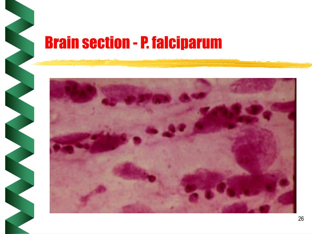 Brain section - P. falciparum