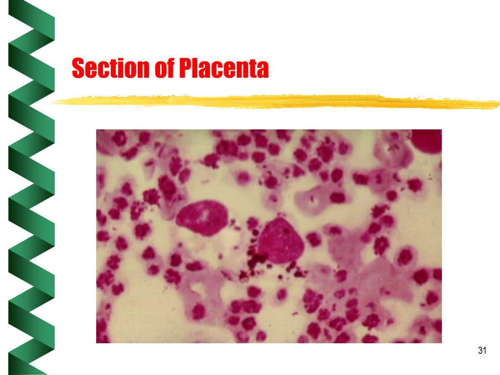 Section of Placenta