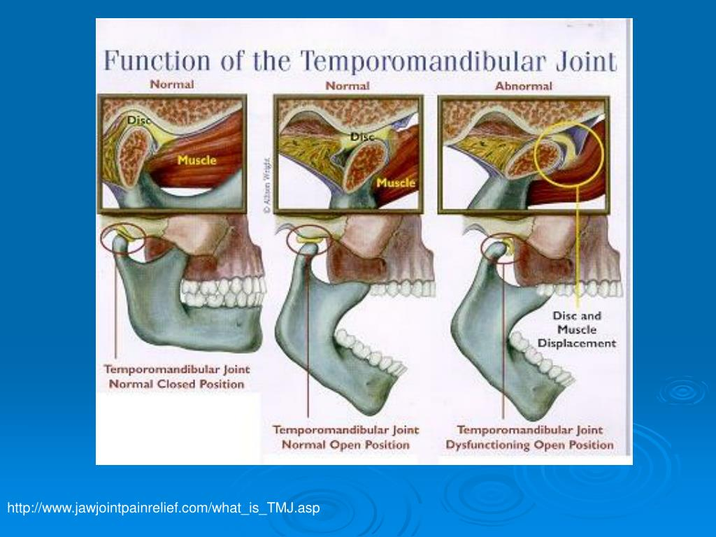 http://www.jawjointpainrelief.com/what_is_TMJ.asp