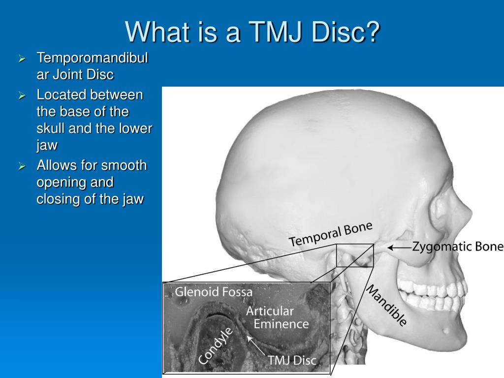 What is a TMJ Disc?