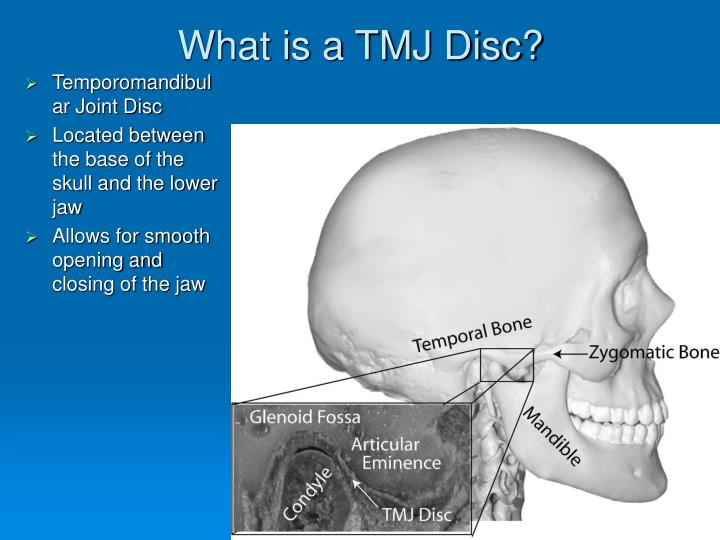 What is a tmj disc