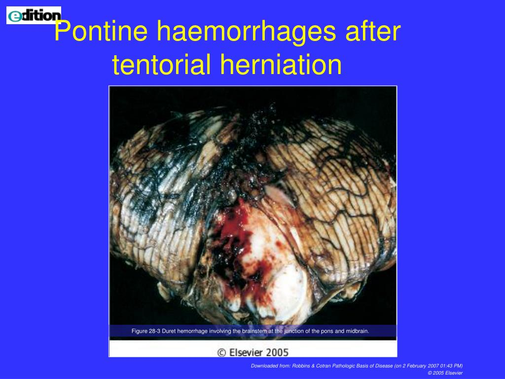 Pontine haemorrhages after tentorial herniation