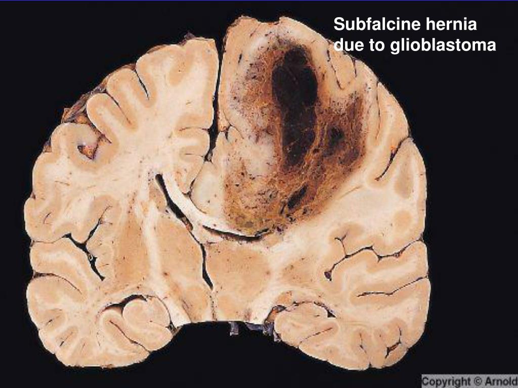 Subfalcine hernia