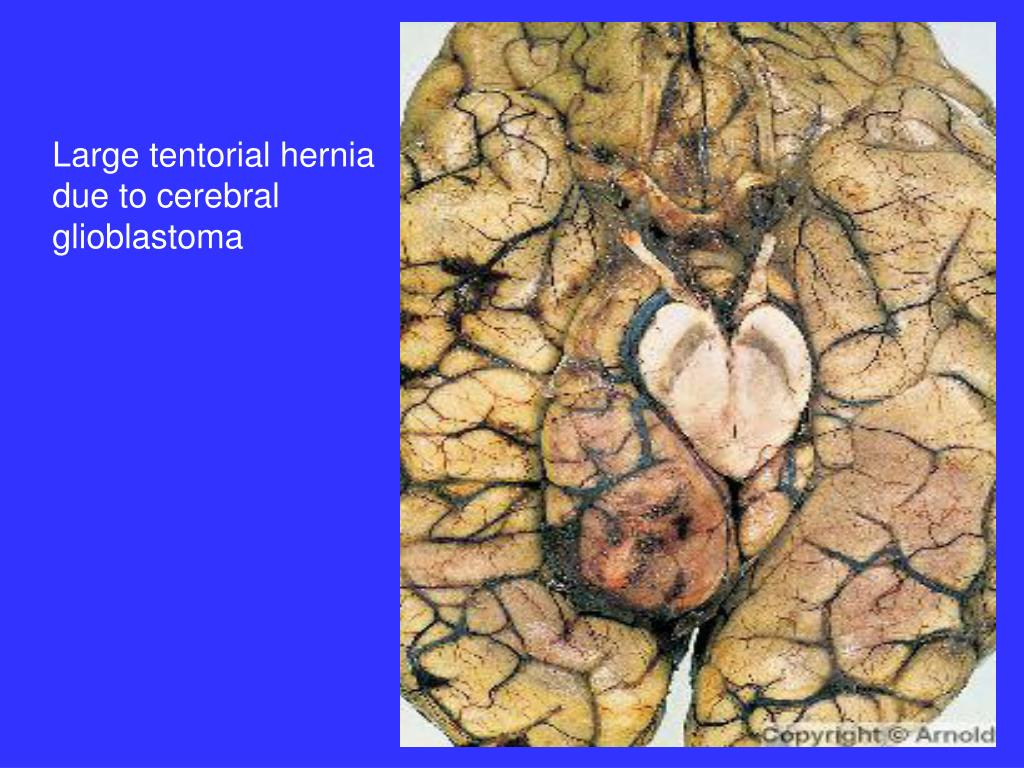 Large tentorial hernia