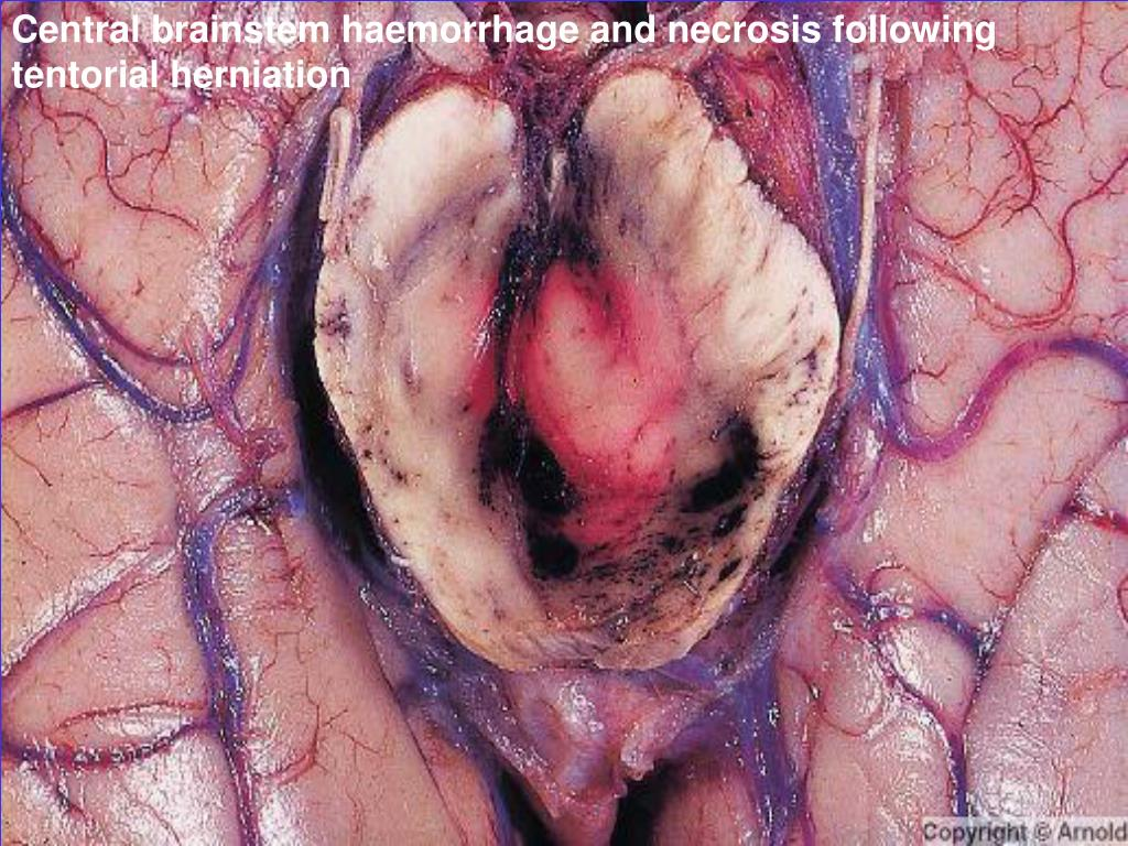 Central brainstem haemorrhage and necrosis following tentorial herniation