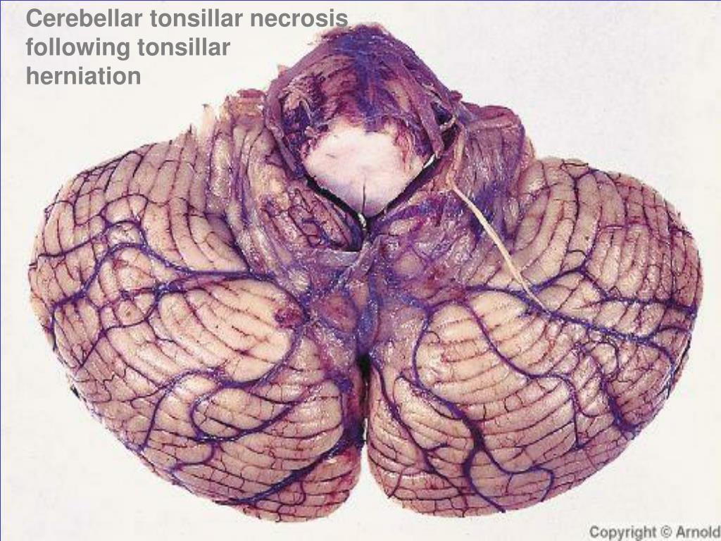 Cerebellar tonsillar necrosis