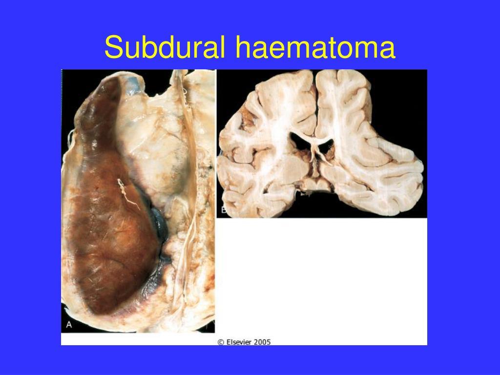 Subdural haematoma