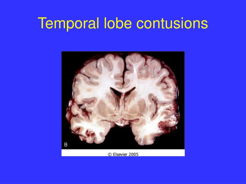 Temporal lobe contusions