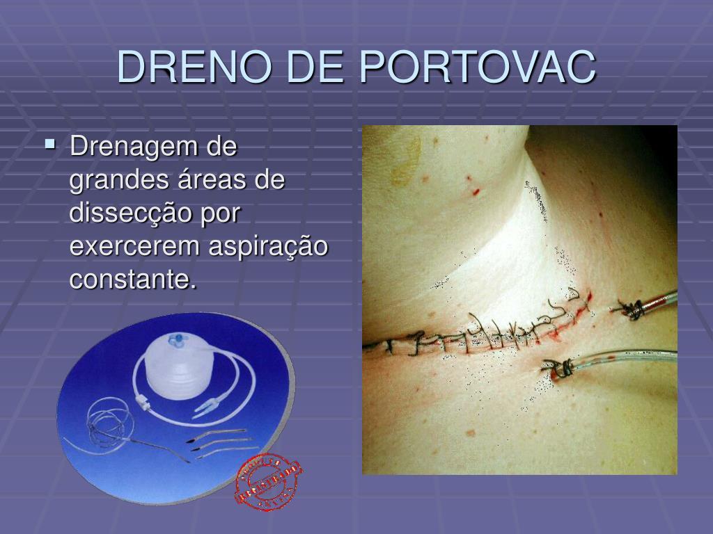 DRENO DE PORTOVAC