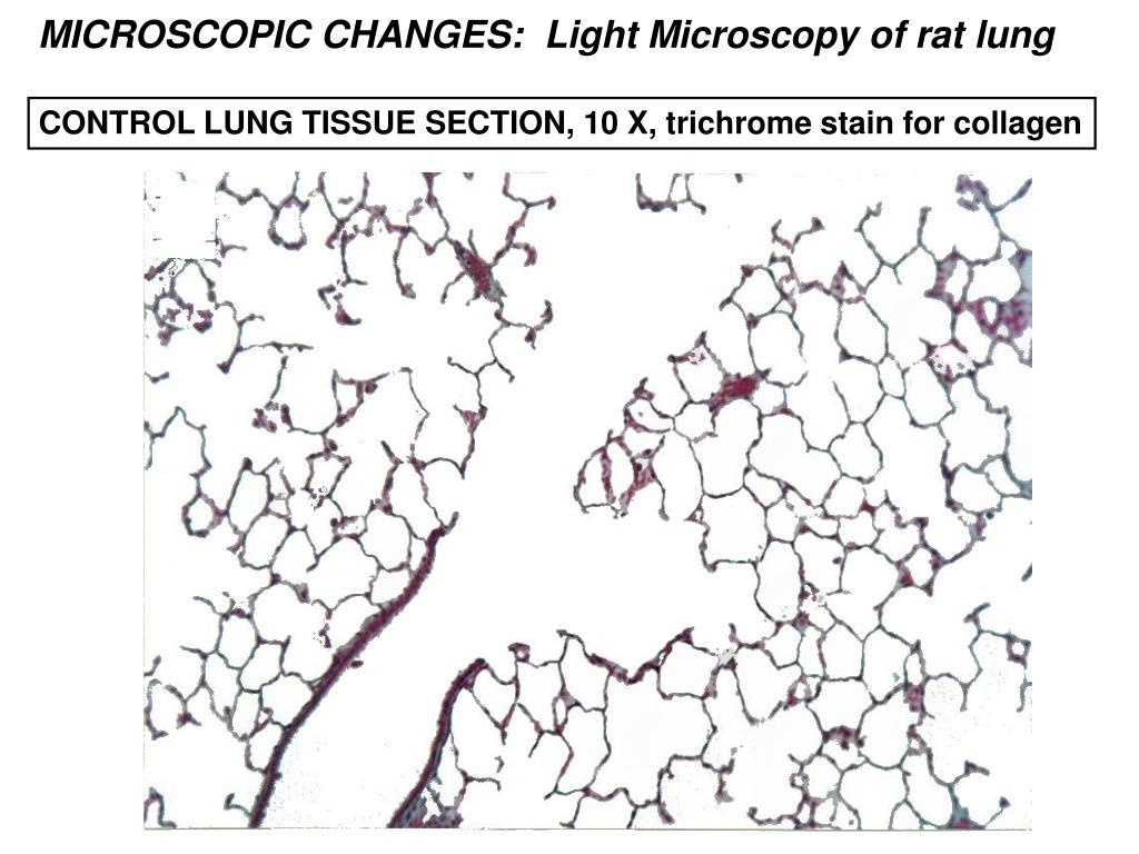 MICROSCOPIC CHANGES:  Light Microscopy of rat lung