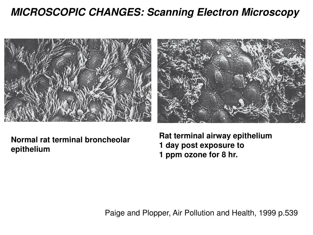MICROSCOPIC CHANGES: Scanning Electron Microscopy