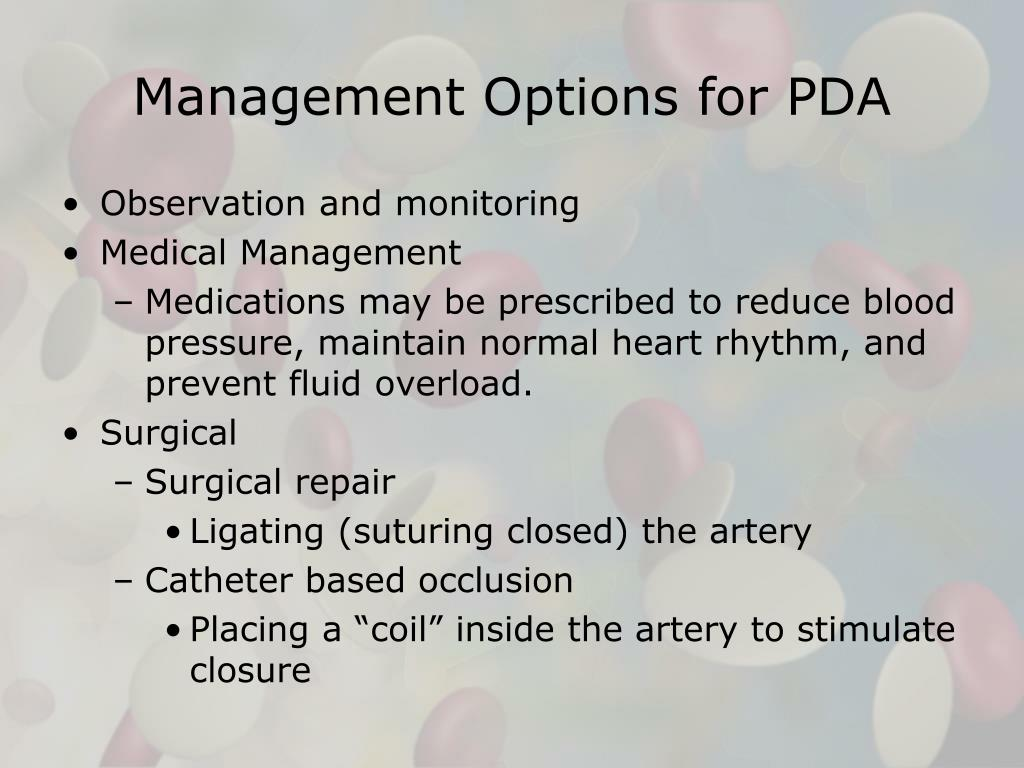 Management Options for PDA