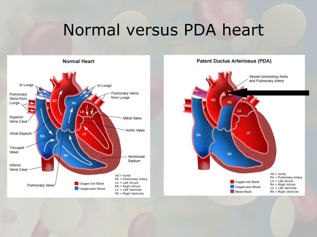 Normal versus PDA heart