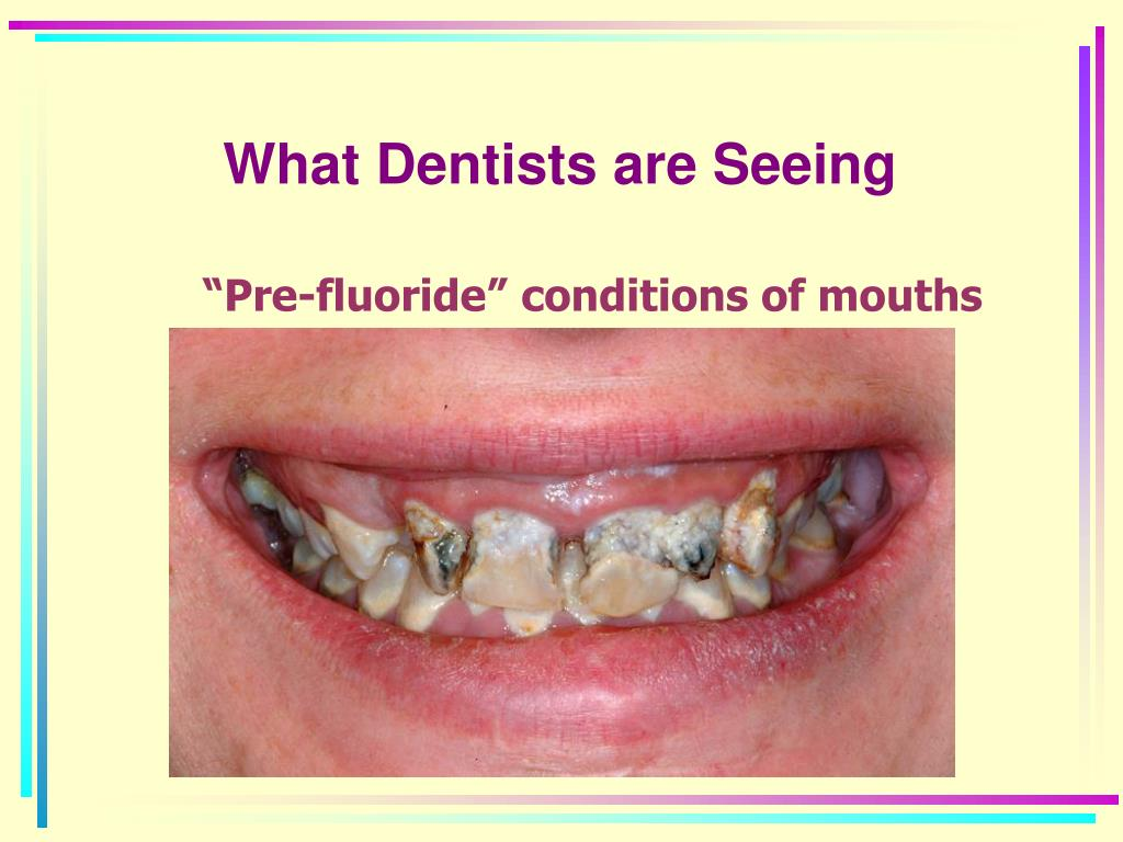 What Dentists are Seeing