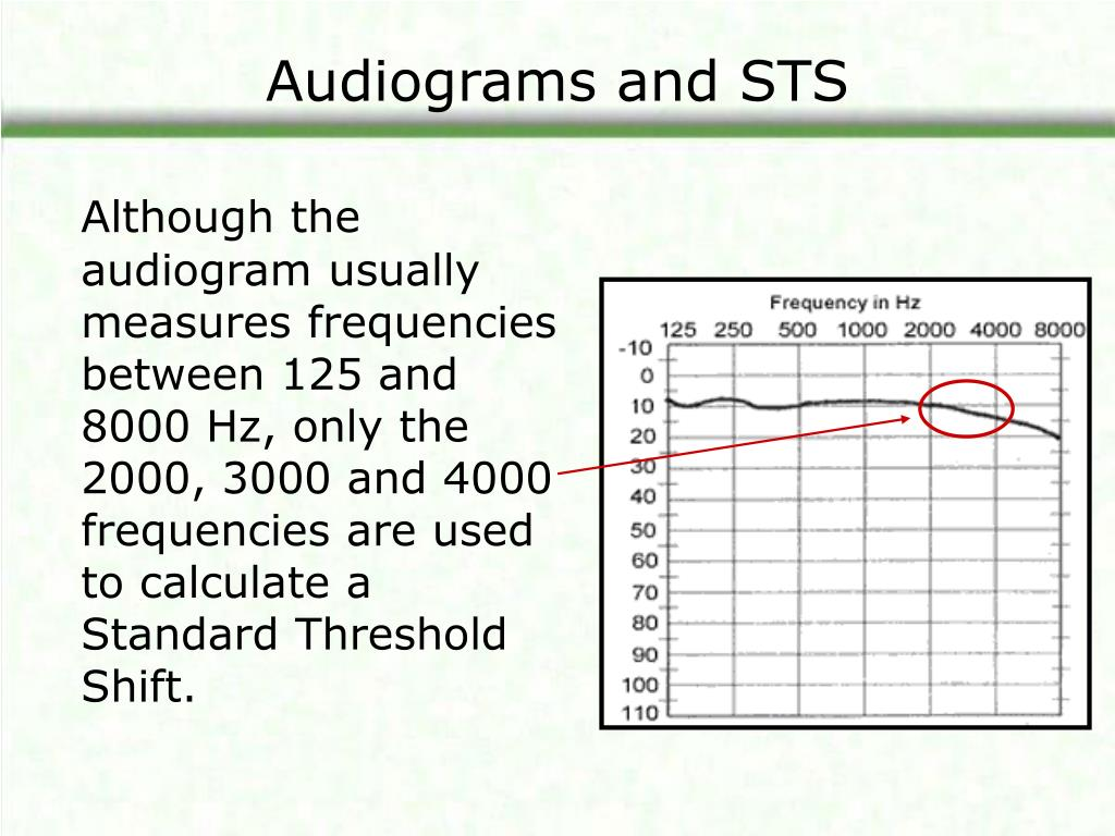 Audiograms and STS