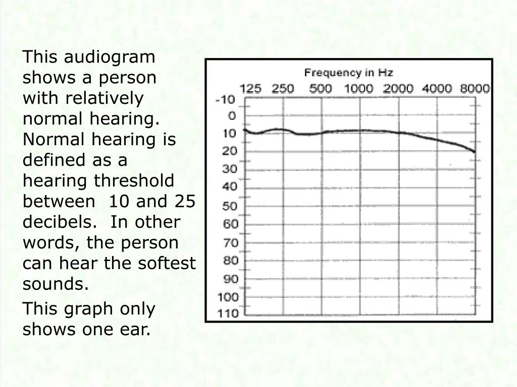 This audiogram shows a person with relatively normal hearing.  Normal hearing is defined as a hearing threshold between  10 and 25 decibels.  In other words, the person can hear the softest sounds.