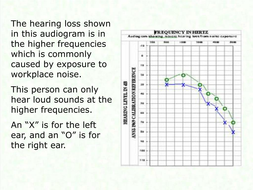 The hearing loss shown in this audiogram is in the higher frequencies which is commonly caused by exposure to workplace noise.