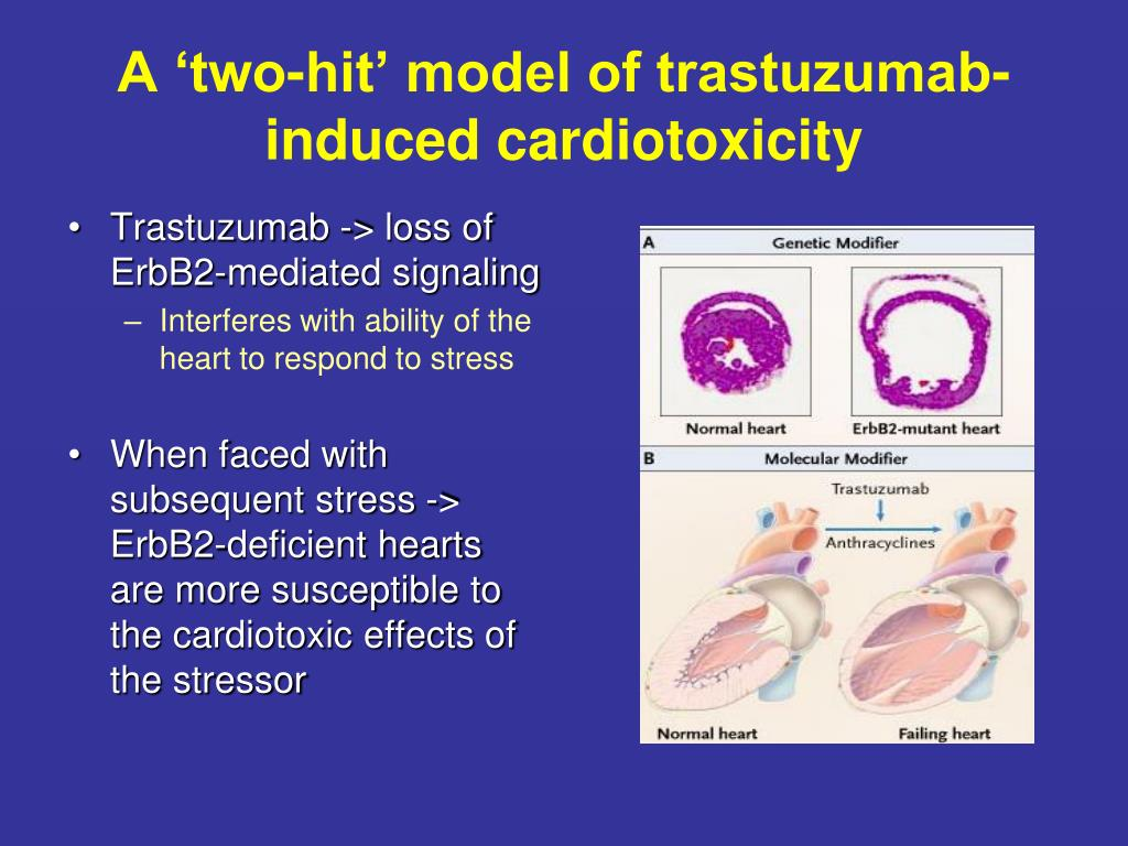 A 'two-hit' model of trastuzumab-induced cardiotoxicity