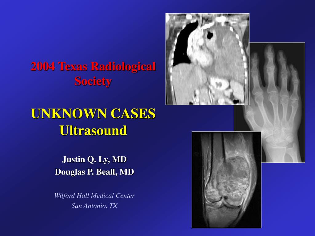 2004 texas radiological society unknown cases ultrasound l.