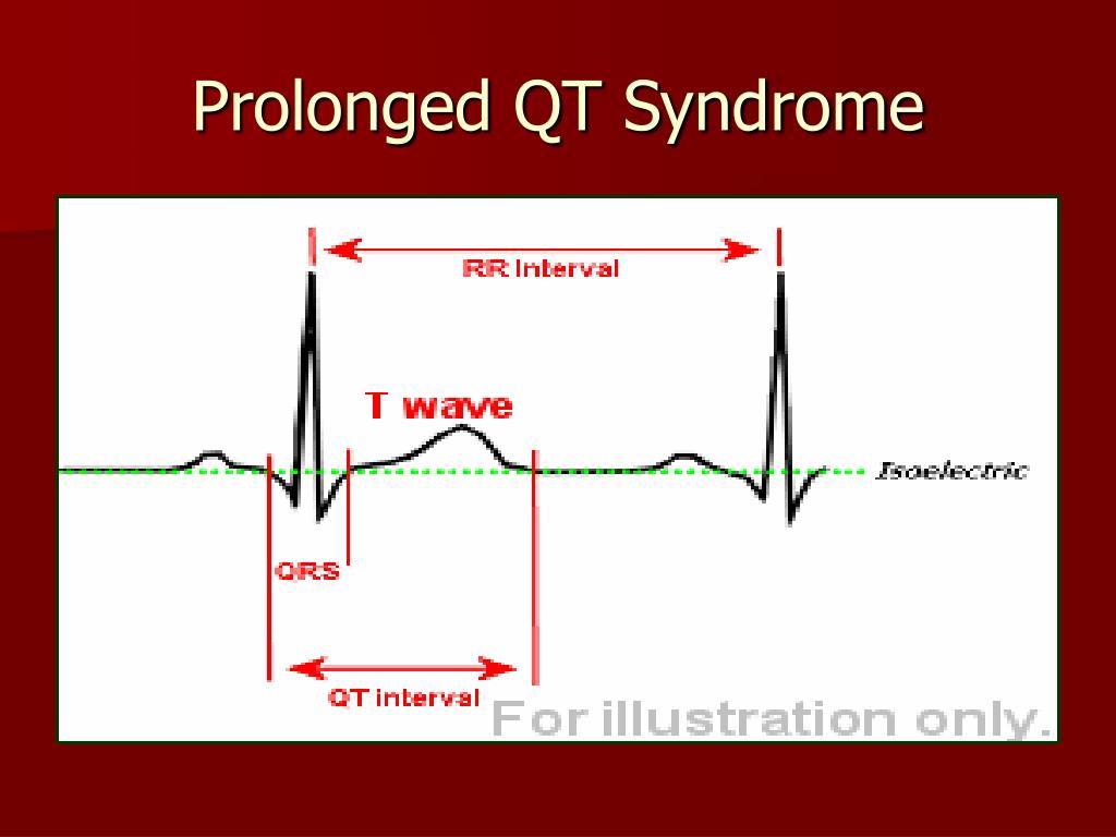 Prolonged QT Syndrome