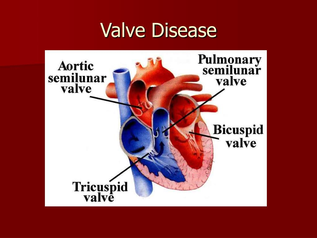 Valve Disease