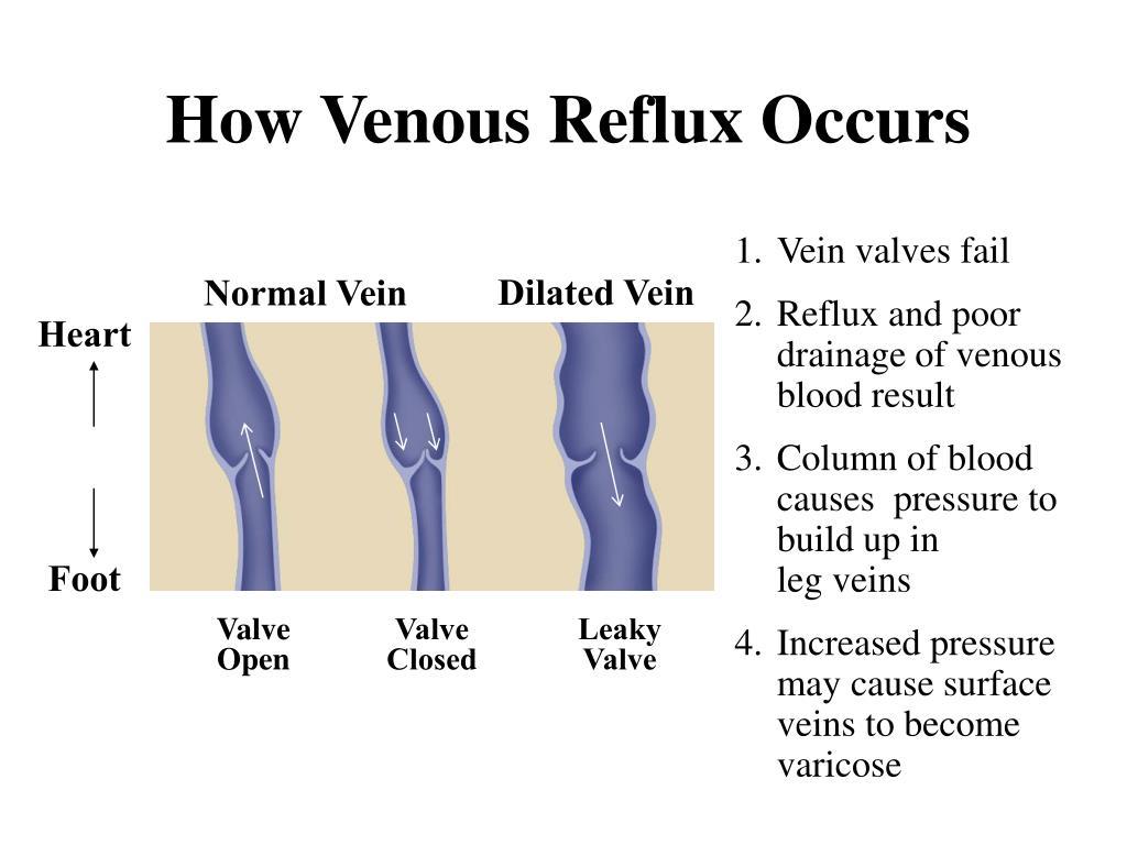 How Venous Reflux Occurs