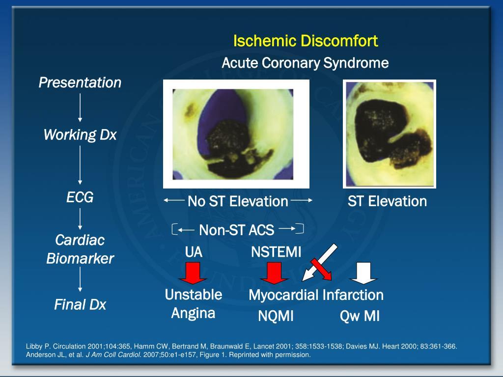 Ischemic Discomfort