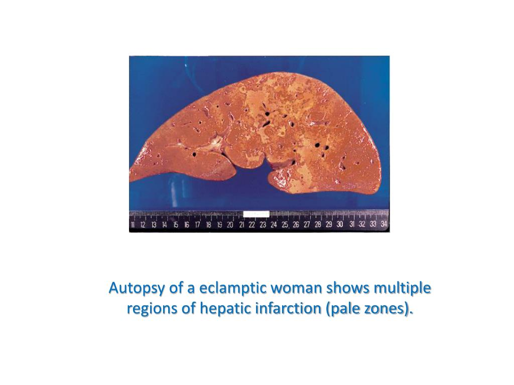 Autopsy of a eclamptic woman shows multiple regions of hepatic infarction (pale zones).
