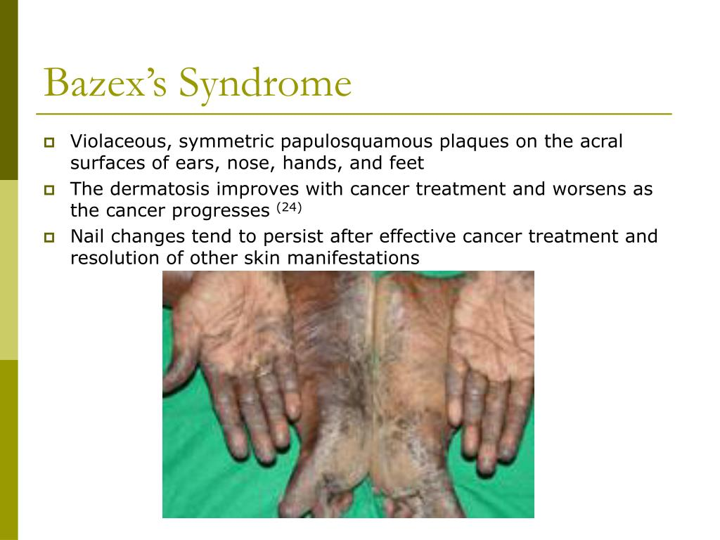 Bazex's Syndrome