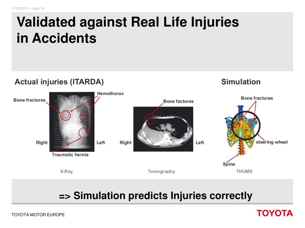 Validated against Real Life Injuries in Accidents