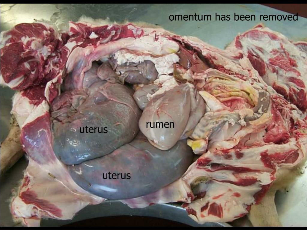 omentum has been removed
