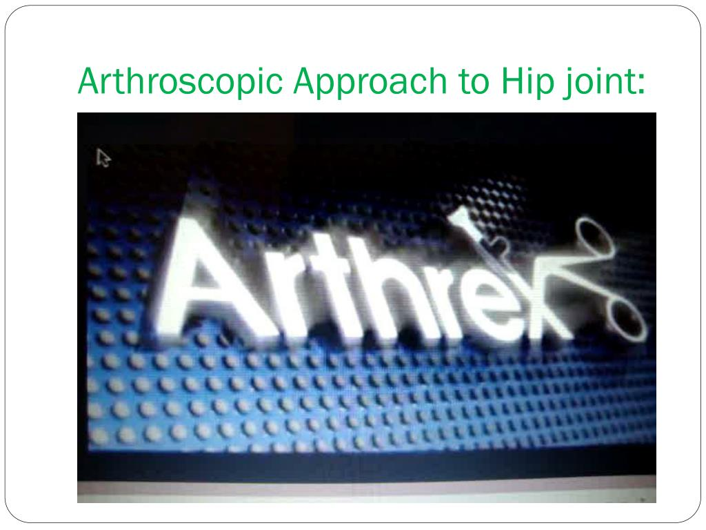 Arthroscopic Approach to Hip joint: