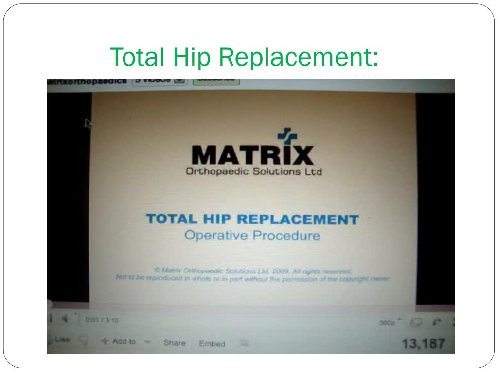 Total Hip Replacement: